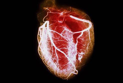 Chronic heart failure recommendations