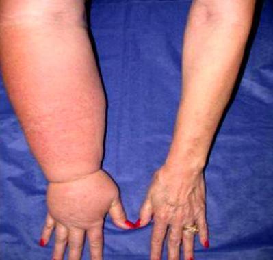 лимфостаз руки после удаления молочной железы фото