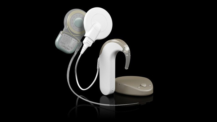 cochlear implantation cost