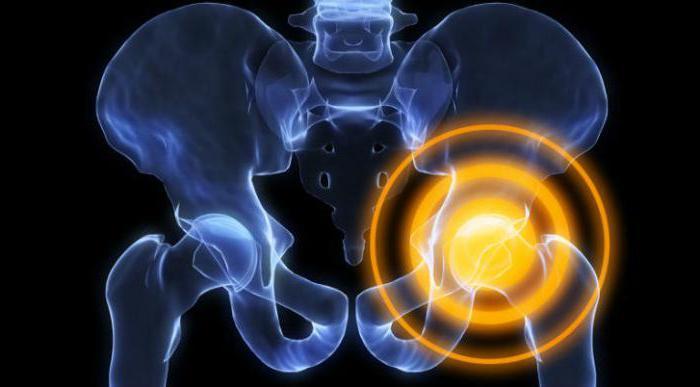 воспаление тазобедренного сустава лечение