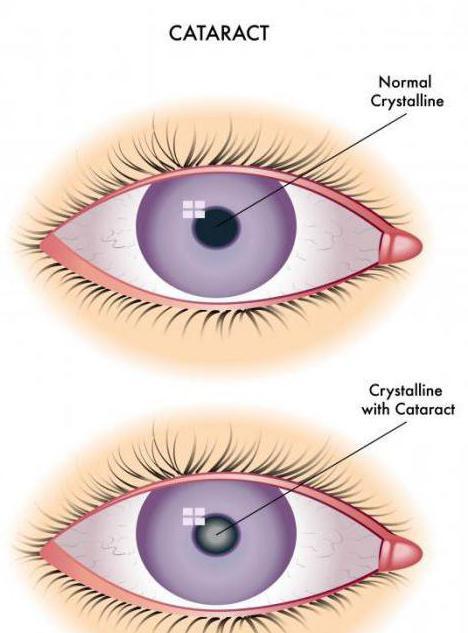 cataract eye treatment folk remedies