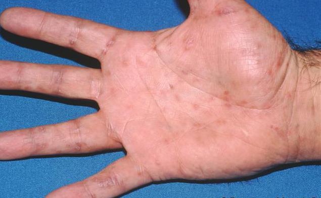 какая сыпь при сифилисе