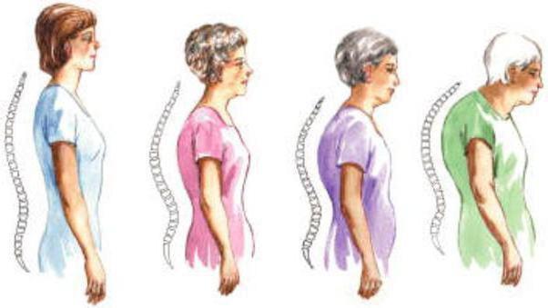 deforming spondylosis of the thoracic spine