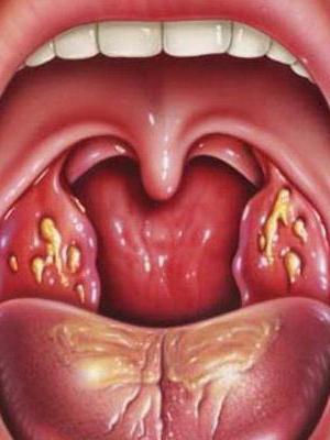 Гнойная ангина у взрослых  симптомы и лечение фото