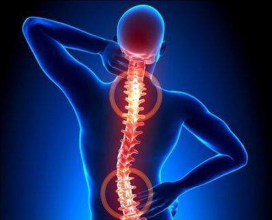 таблетки от боли в спине при остеохондрозе