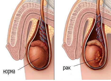 признаки рака яичек у мужчин
