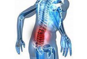 симптом ласега при остеохондрозе