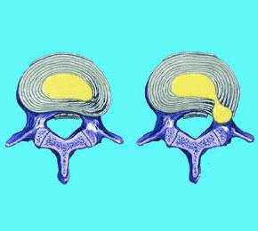 симптом ласега нери