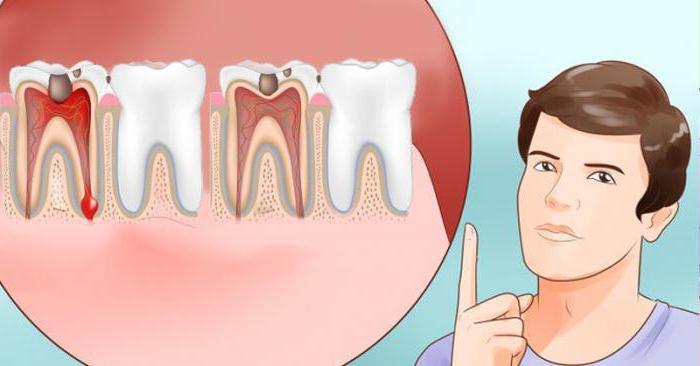 От чего ноет запломбированный зуб