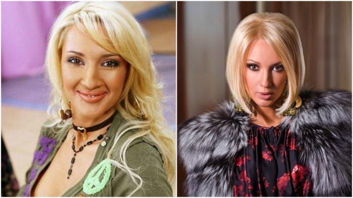 Valeria Kudryavtseva before and after plastic surgery