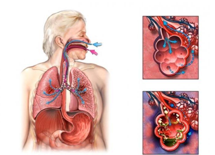Как лечить дисбактериоз верхних дыхательных путей