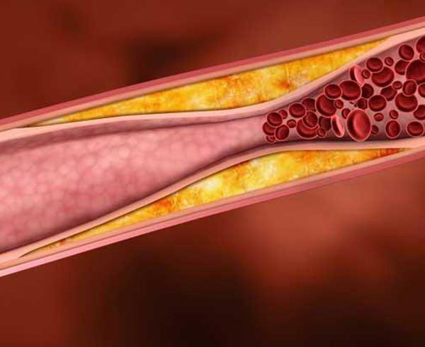 препараты снижающие холестерин в крови цена
