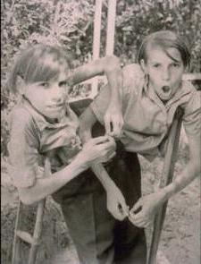 siamese twins sisters krivoshlyapovy