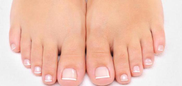 Онихомикоз - что это такое? Эффективное лечение онихомикоза ногтей
