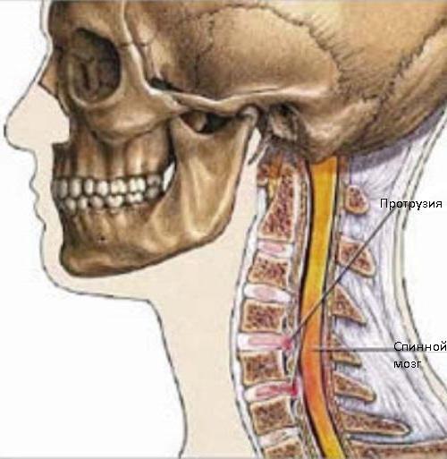 Протрузия диска шейного отдела чем лечится