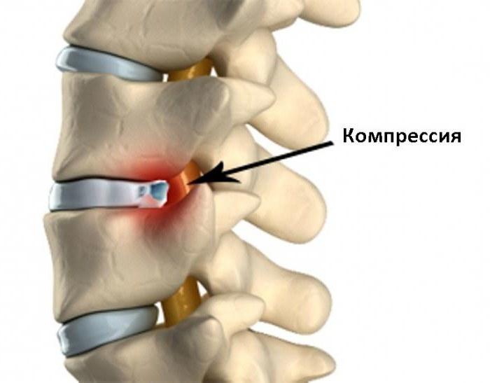Протрузии межпозвоночных дисков в шее
