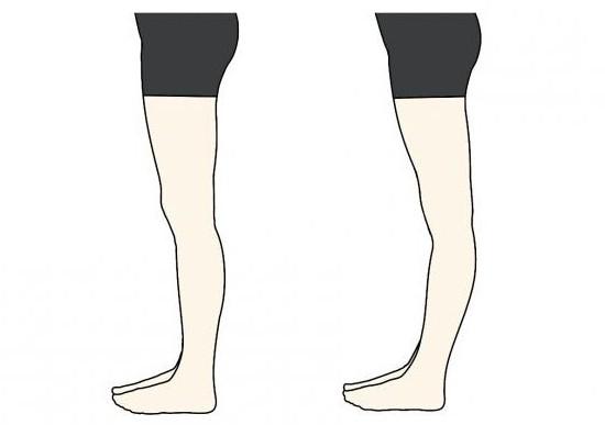 Изображение - Основной признак ложного сустава 1809636