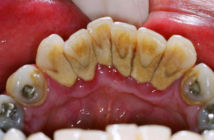 can I smoke after tooth extraction