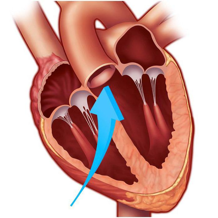 Створки аортального клапана