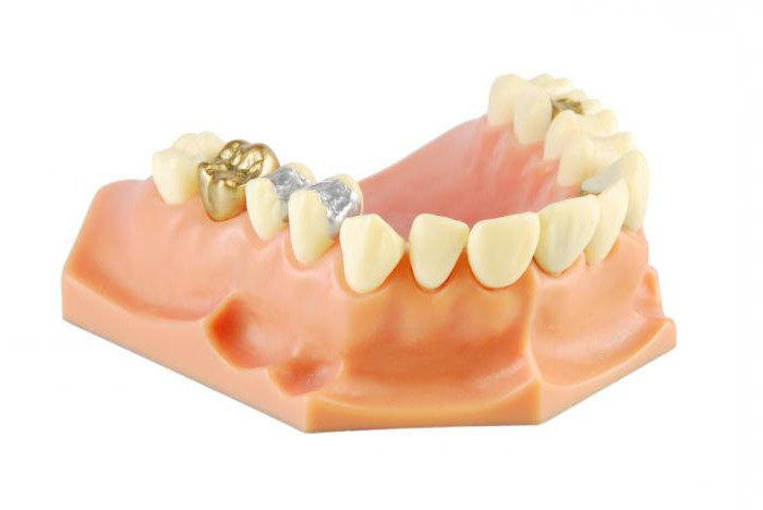 solid tooth crown