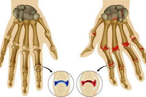 Причины ревматоидного артрита рук