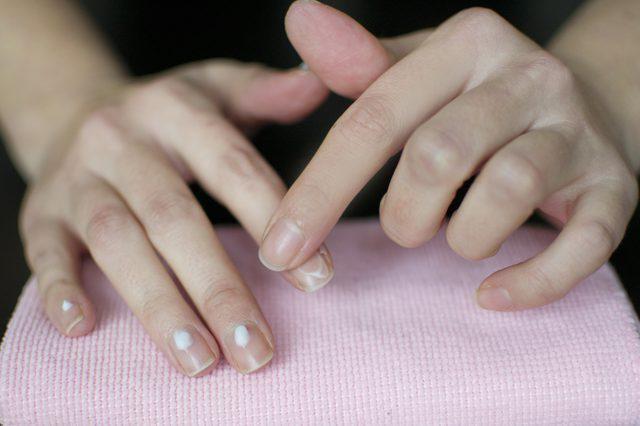 Ribbed fingernails cause