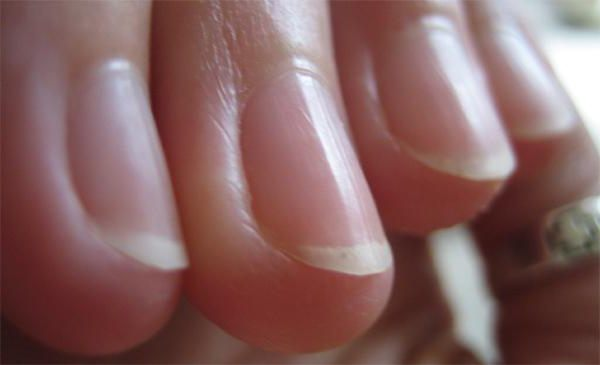 Why nails are ribbed on the hands of the reasons