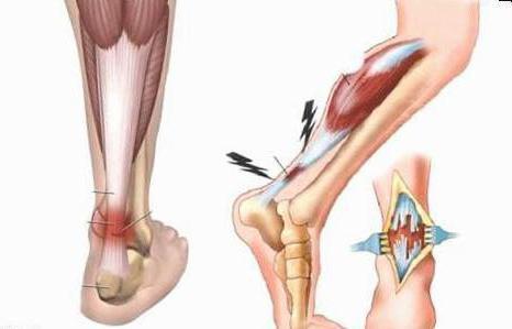 Ахиллобурсит пяточной кости – лечение и отзывы о домашнем оздоровлении