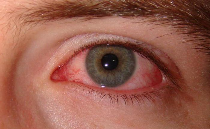 Неванак глазные капли инструкция по применению