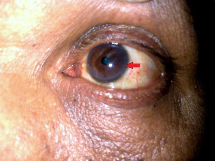 herpetic keratitis treatment