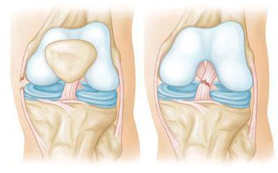 порваны связки на ноге