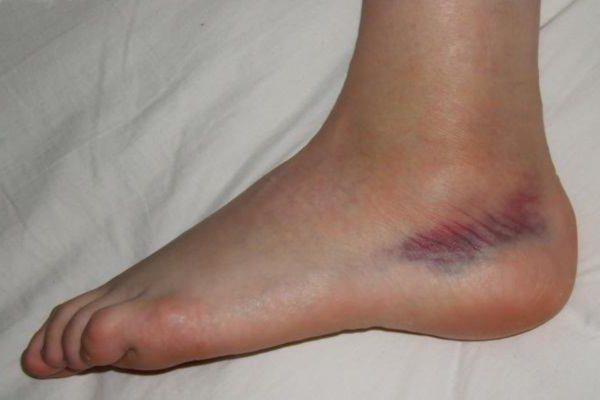 Порвала связки на ноге симптомы