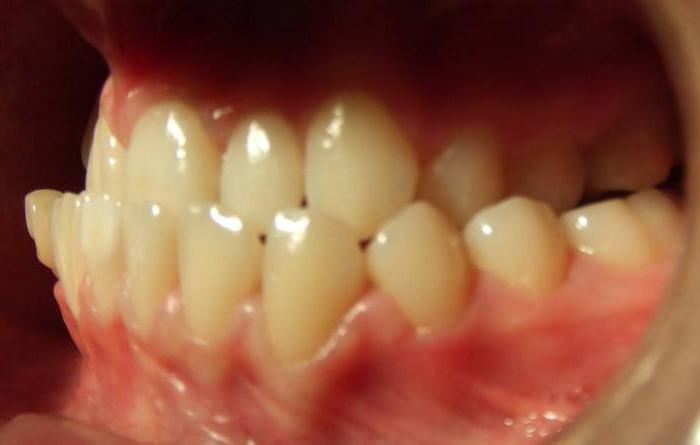 крошатся зубы причины