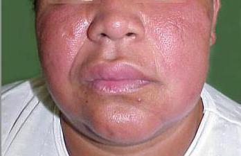 синдром мелькерссона розенталя симптомы