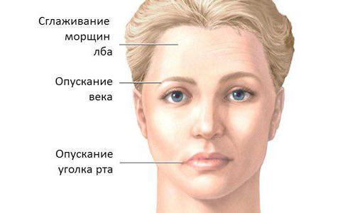 мелькерссона розенталя синдром