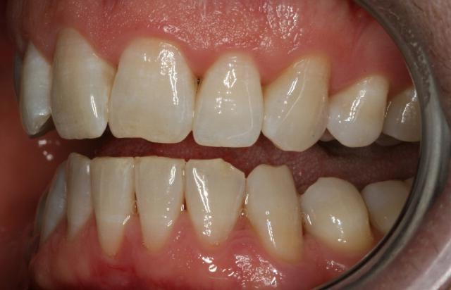 болят все зубы сразу и десна
