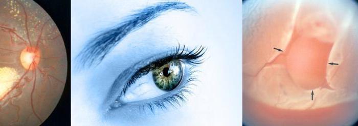 разрыв сетчатки глаза после операции
