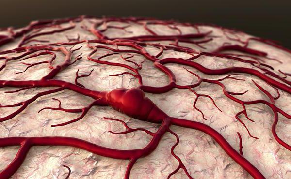 профилактика тромбоза глубоких вен