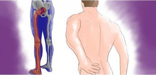 резкая боль в ягодице отдающая в ногу