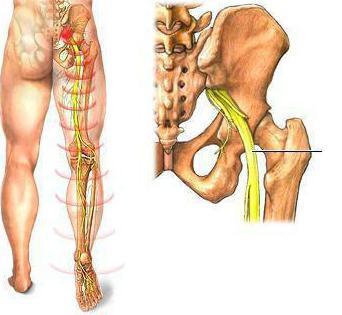 Болит мышца ягодицы и отдает в ногу thumbnail