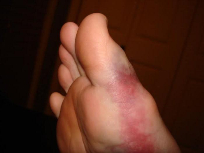 Суставной перелом большого пальца спортивное питание добавки для суставов и связок
