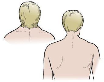 feil klippel syndrome prognosis