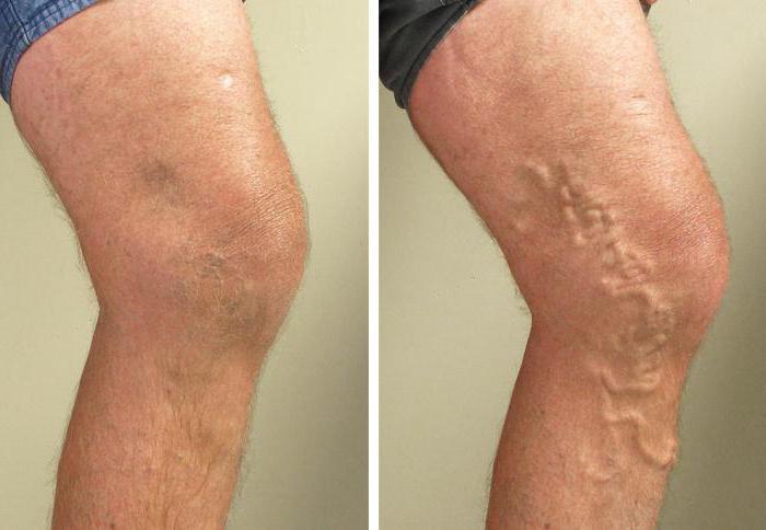 Препараты от боли в ногах при варикозе