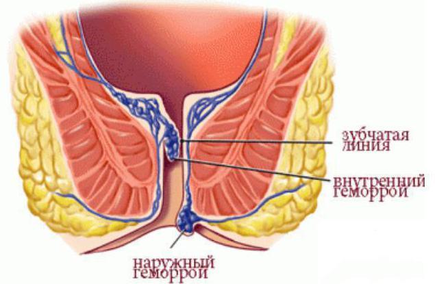 Болит ли низ живота при геморрое причины боли и симптомы