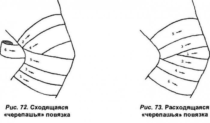 Изображение - Повязка на локтевой коленный сустав 1951655