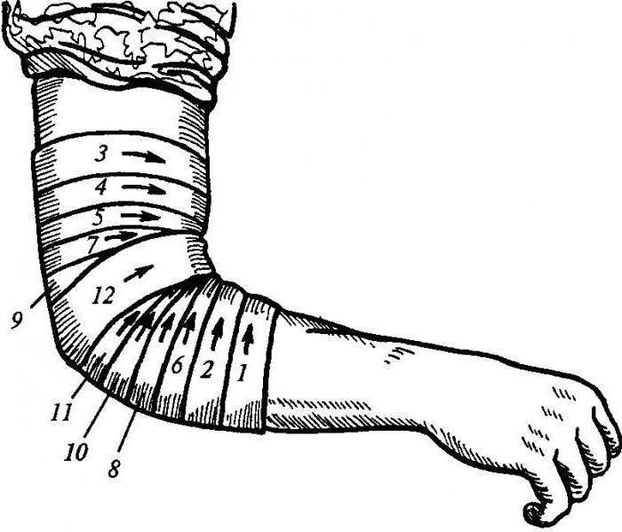 Изображение - Повязка на локтевой коленный сустав 1951661
