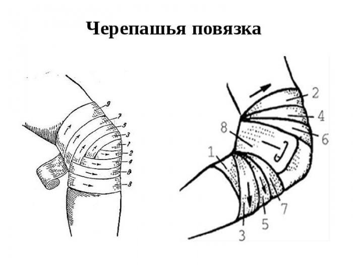 Наложение расходящейся повязки на локтевой сустав колено после ушиба как лечить