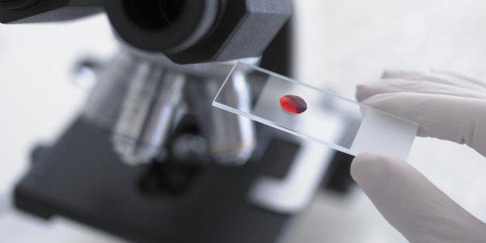 афп анализ крови что означает при беременности