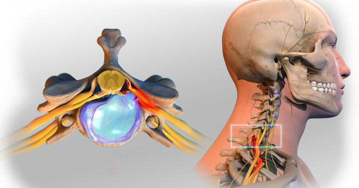 hernia of the cervical spine symptoms treatment exercises