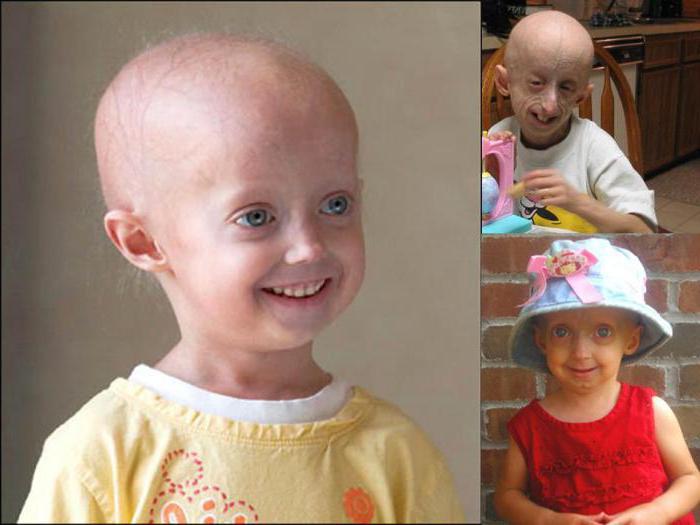 Werner's Progeria Syndrome